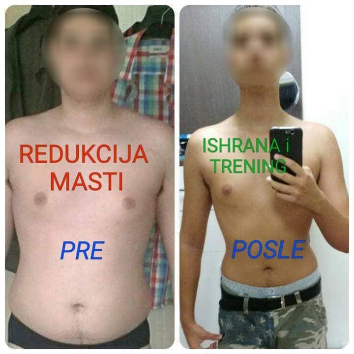 Redukcija telesne mase – pre i posle